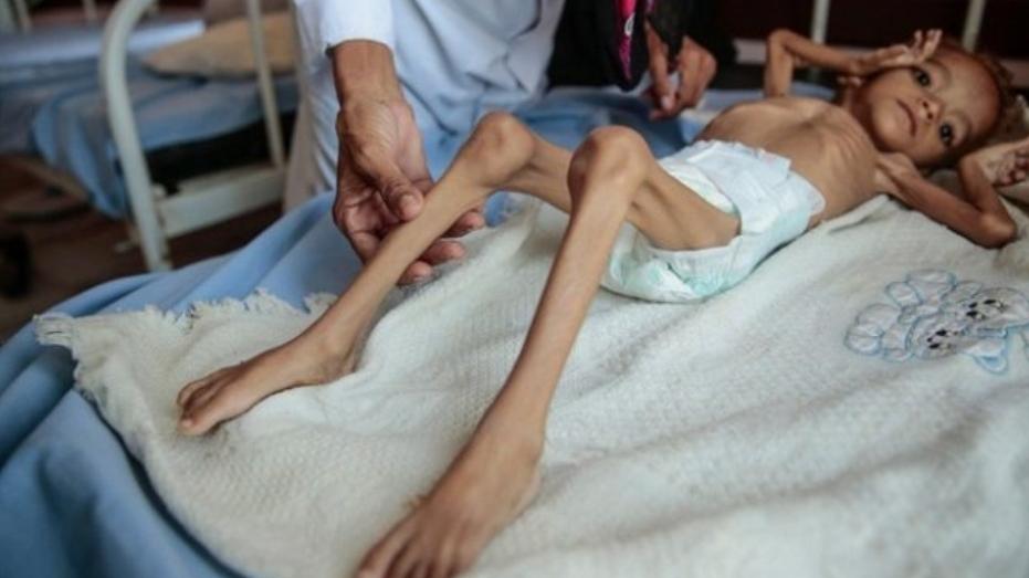У посљедња 24 сата преминуло је 8 ХИЉАДА дјеце од глади